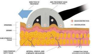 treatment head